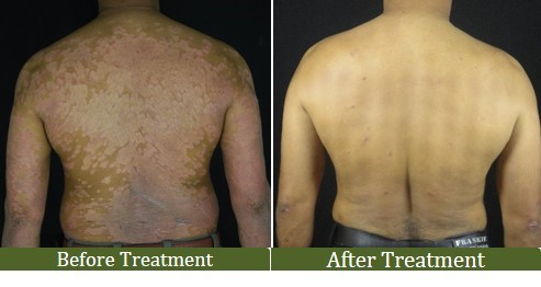 Significant reduction of Psoriasis after Integrative Treatment